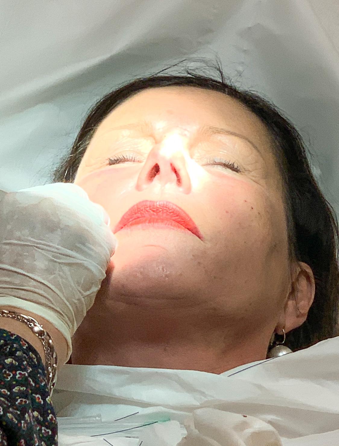 injection d'acide hyaluronique dans le pli d'amertume pour un effet moins triste