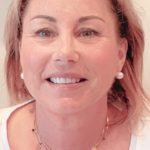 protocole YSIS Institut anti âge à Cannes âge